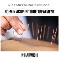 NEW CLIENT SPECIAL: Microneedling Cape Cod in Harwich is offering 33% OFF an 60-MINUTE ACUPUNCTURE TREATMENT